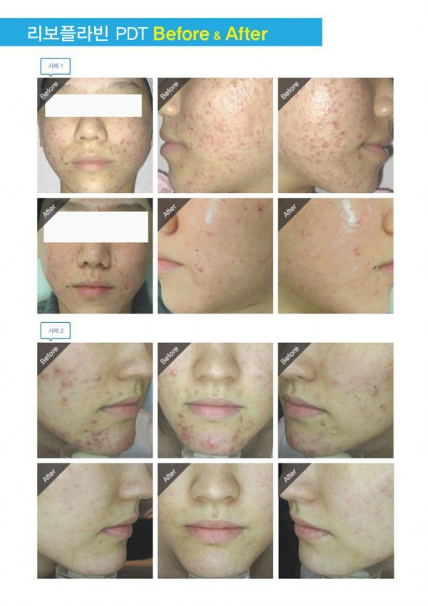 PDT gel PDT acne therapy before after